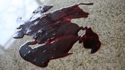 Moulage & Blood