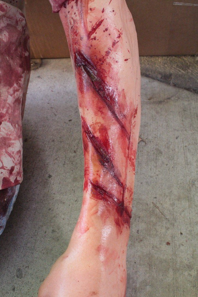Earthquake Alan Leg Wounds