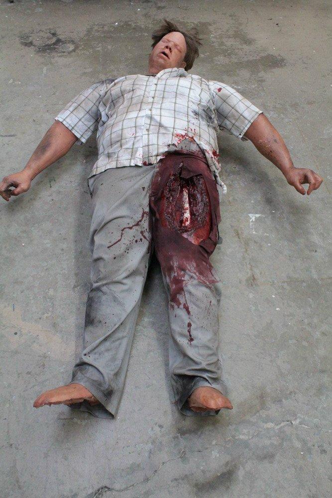 Earthquake Wounded Gordo Body